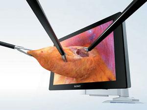 3-d-laparoscopy1